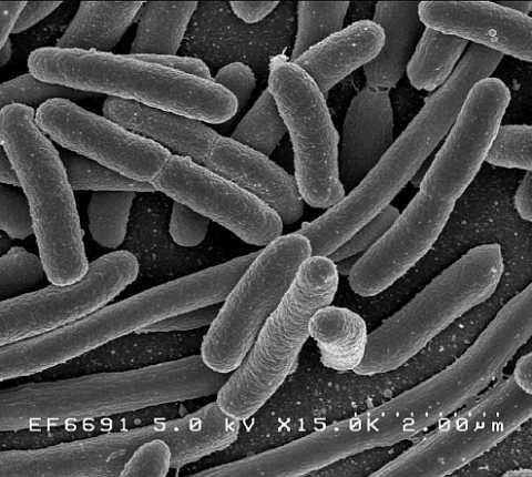 """מחקר חדש באוניברסיטה העברית: חיידקים מפתחים """"מנגנון השהייה"""" לצורך התחמקות מאנטיביוטיקה"""